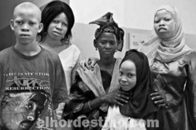 La terrorífica pesadilla de ser una persona albina en África y de la que todo el mundo debería enterarse