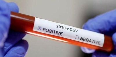 Coronavirus: ya son 41 los positivos