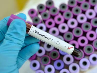 Covid-19: Aumentan a 59 los casos de coronavirus en el país