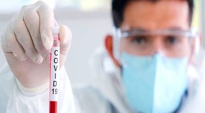 Coronavirus y enfermedades reumáticas