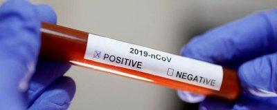 Coronavirus en Paraguay: El Chaco tiene su primer caso confirmado de COVID-19