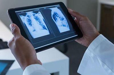 Radiólogos en cuarentena ofrecen ayuda gratuita para el tratamiento de pacientes con Covid-19