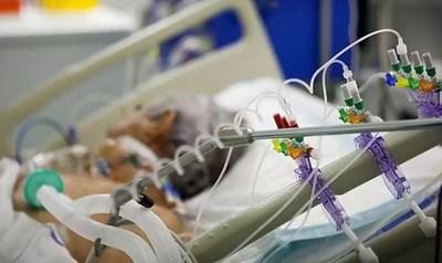 Cien respiradores fueron retenidos en EEUU y Brasil, confirma Ministerio de Salud