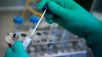 Según un estudio alemán, el COVID-19 se propaga mil veces más en la garganta que el virus del SARS