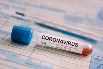 COVID-19: 'Este virus no es una gripecita cualquiera, creo que a nivel mundial se le subestimó', sostiene doctor