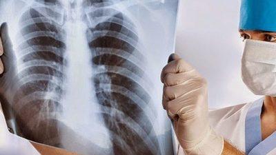 Salud gasta G. 5.240 millones en rayos X