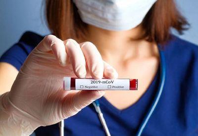 Médico destaca estudio realizado con anticoagulantes en pacientes con COVID-19