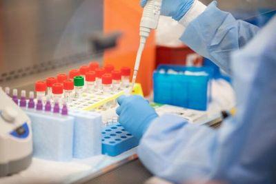 Pacto global donó 10.000 test para detección del coronavirus