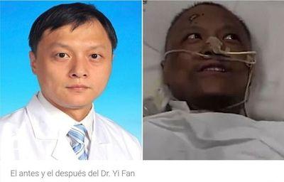 El extraño cambio en el color de la piel de dos médicos que sobrevivieron al coronavirus en Wuhan