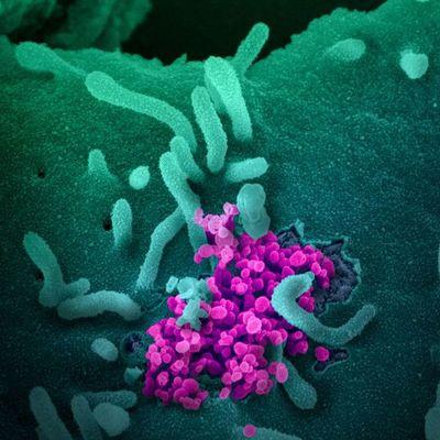 Continúa desarrollo de anticuerpos contra el COVID-19 – Prensa 5