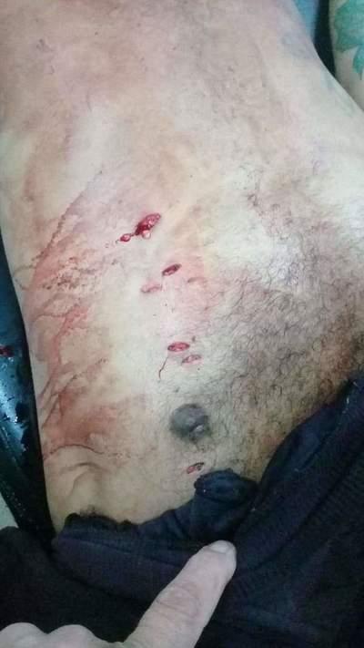 Durante riña en la cárcel de CDE matan de siete estocadas a brasileño procesado por narcotráfico