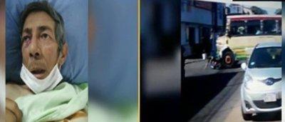 """Motociclista arrollado: """"El bus quedó sobre mi espalda"""""""