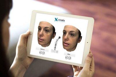Implementan inteligencia artificial para reconstrucción de cuerpos tras cirugías