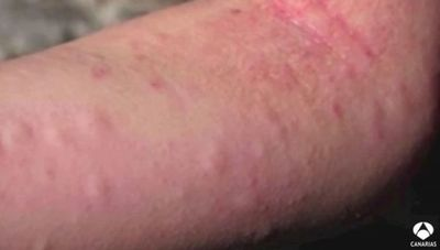 Indígena muere tras ser aguijoneado por abejas