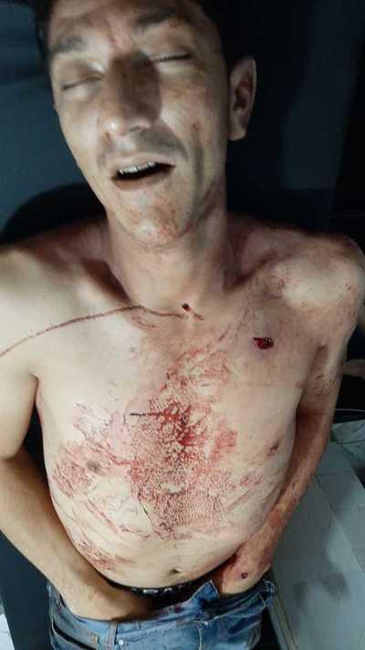 Delincuente muere al ser herido por un policía durante violento asalto