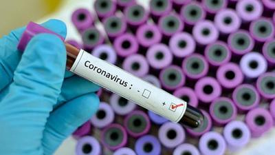Covid-19 en Paraguay: suman 52 nuevos positivos, 13 de ellos son casos sin nexo