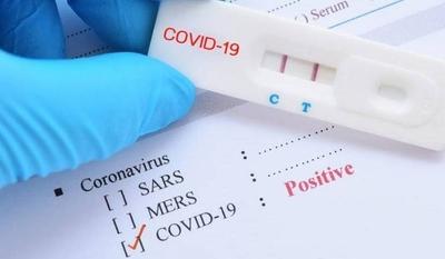 HOY / Confirman 98 nuevos casos de COVID-19, la mayoría contactos: suman otros 17 sin nexo