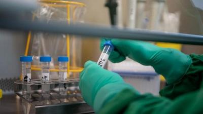 Diputado con Covid-19: Ministerio de Salud auditará laboratorio privado