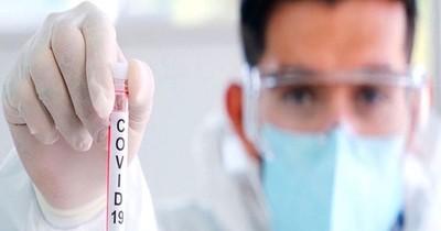 Itapúa reporta 38 casos positivos de COVID-19